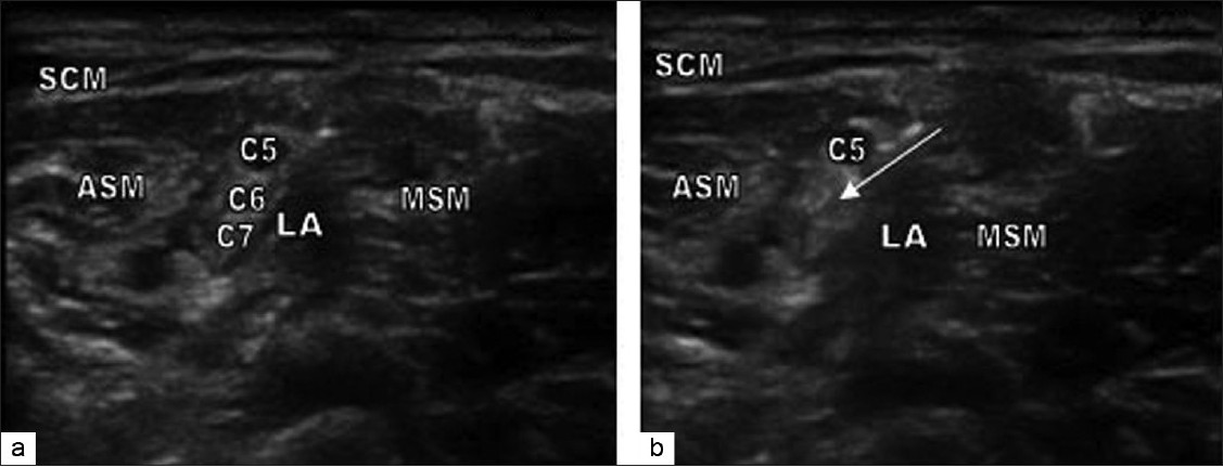 Effect of bupivacaine concentration on the efficacy of ultrasound ...