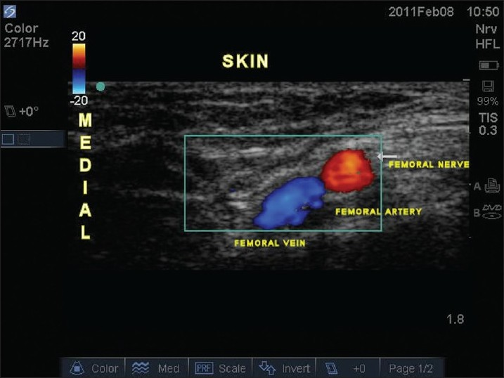 ultrasound-guided peripheral and truncal blocks in pediatric, Muscles