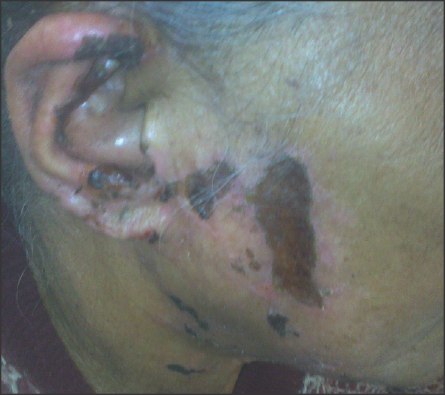 Figure 1: Lesion over cheek and ear lobe