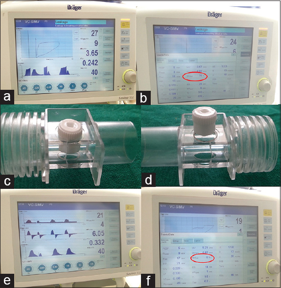 Figure 1: (a) Leakage alarm (b) percentage of leakage (c) an intravenous cannula blocker was placed to demonstrate damaged diaphragm (d) an intravenous cannula blocker was placed to demonstrate intact transparent diaphragm (e) disappearance of alarm and normal ventilator graphics (f) 0% leakage after rectification of problem