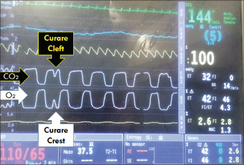 Figure 1: Curare cleft in capnogram and curare crest in oxygen waveform