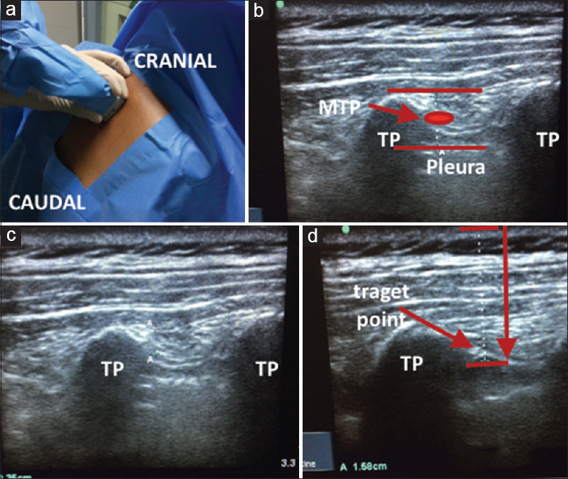Figure 1: (a) Patient positioned sitting with linear array probe (13 to 6 MHz) placed in parasagittal plane over the transverse process. (b) Arrow in image showing the midpoint between posterior surface of TP and pleura, MTP: midpoint. (c) Sonographic image showing measurement of midpoint transverse process to pleura. (d) The target location for deposition of local anesthetic