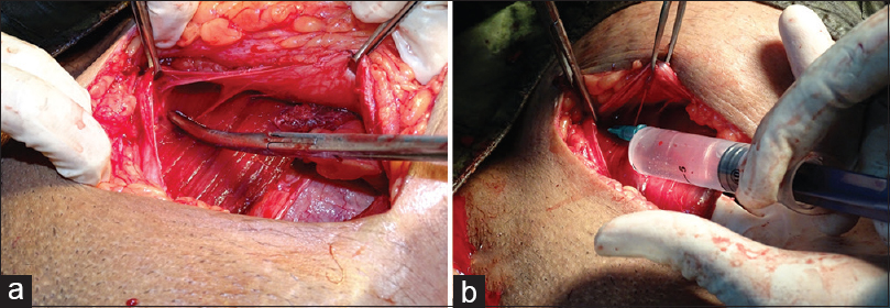 Figure 1: Anterior abdominal field block the linea semilunaris approach during the Cesarean section after the closure of uterus. (a) Surgical site anatomy showing retracted anterior rectus sheath, rectus abdominus muscle and linea semilunaris. (b) The needle tip is positioned above the rectus abdominus muscle, at linea semilunaris at which the local anesthetic is injected