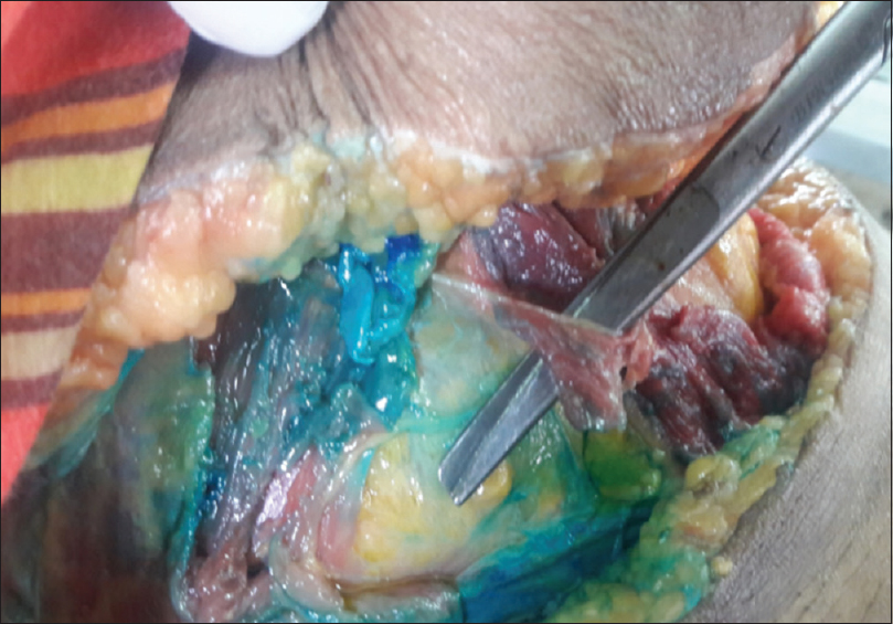 Figure 2: Cadaveric dye injection study in fresh cadaver showing dye spread above fascia transversalis