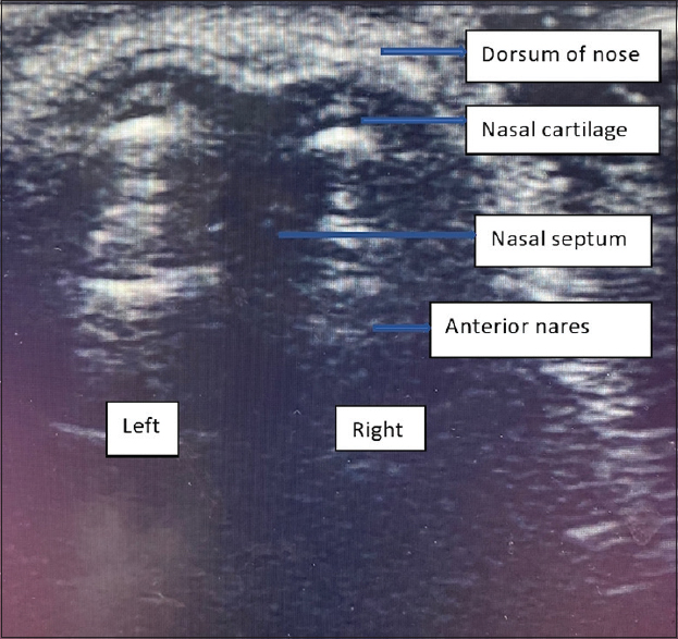 Figure 2: Figure depicting the ultrasound visualized nasal anatomy