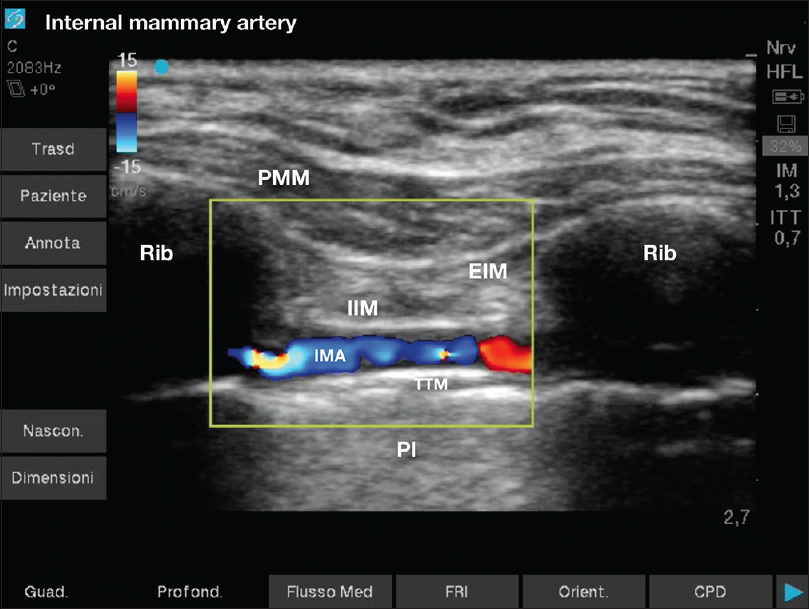 Figure 1: Ultrasound internal mammary artery landmarks. The internal mammary artery runs between internal intercostal and transversus thoracis muscles. PMM: Pectoralis major muscle; IIM: internal intercostal muscle; EIM: external intercostal muscle; TTM: transversus thoracis muscle; IMA: internal mammary artery; Pl: pleura; Rib: rib