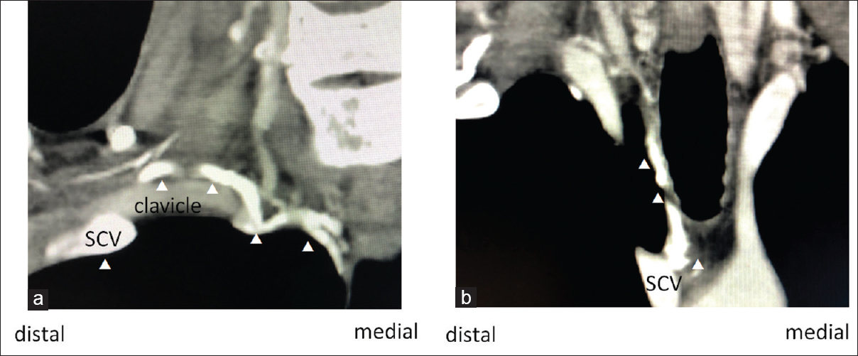Figure 2: Contrast-enhanced computed tomography to diagnose the subclavian vein anatomy. SCV: Subclavian vein (a) around the clavicle (b) around the cervical region